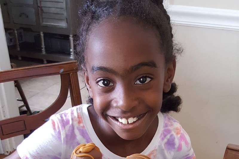 Jasmine, who had a Pott's puffy tumor, smiles for the camera