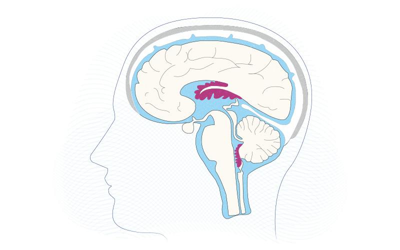 choroid plexus in the brain